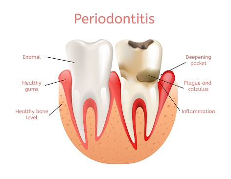 Periodontitis diagram at VT Perio