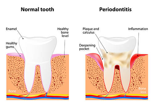 Periodontitis diagram